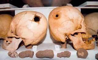 Trepanación craneana en la Cultura Paracas